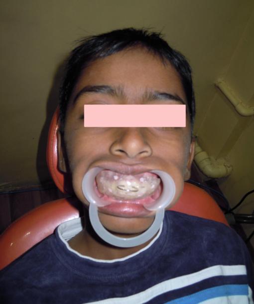 Thumb Sucking Habit Breaking Appliance Children Dentist